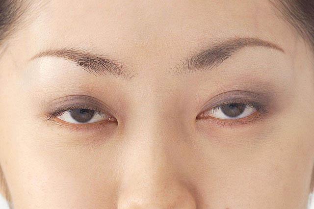 眼瞼けいれんと眼瞼ミオキニア
